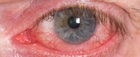 глаз с Тромбозом центральной вены сетчатки