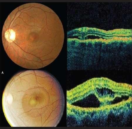 сетчатка при хориоретинопатии