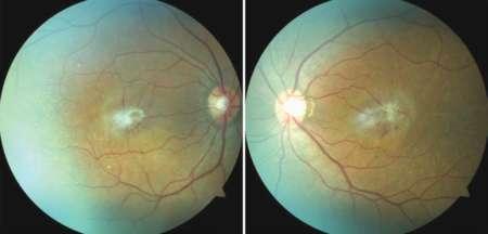 Эпиретинальная мембрана глаза