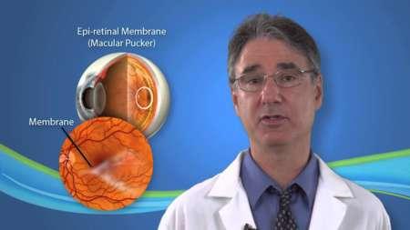 доктор рассказывает об Эпиретинальной мембране глаза