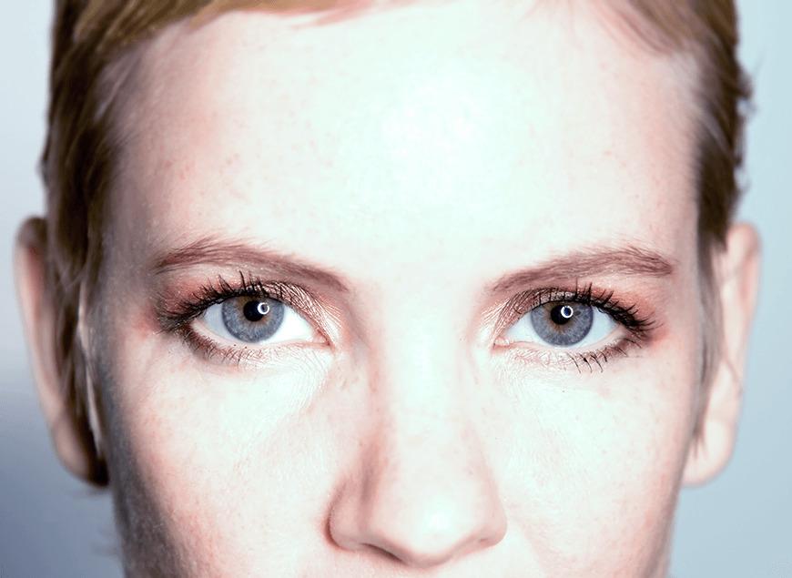 Пигментная дистрофия сетчатки глаза: лечение
