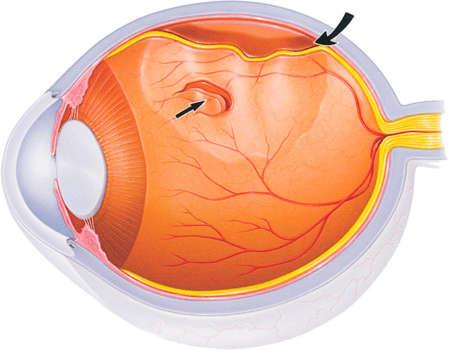структура глаза при отслойке сетчатки