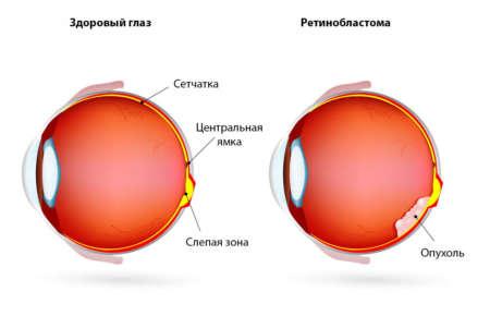 как выглядит ретинобластома