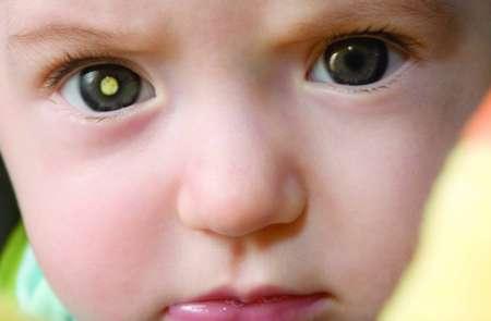 светящийся зрачок у ребенка