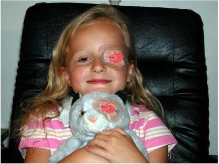 ребенок с заклеенным глазом