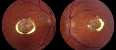 сетчатка глаза с абитрофией