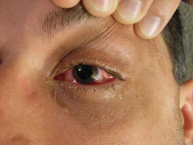 Кровоизлияние в роговицу глаза