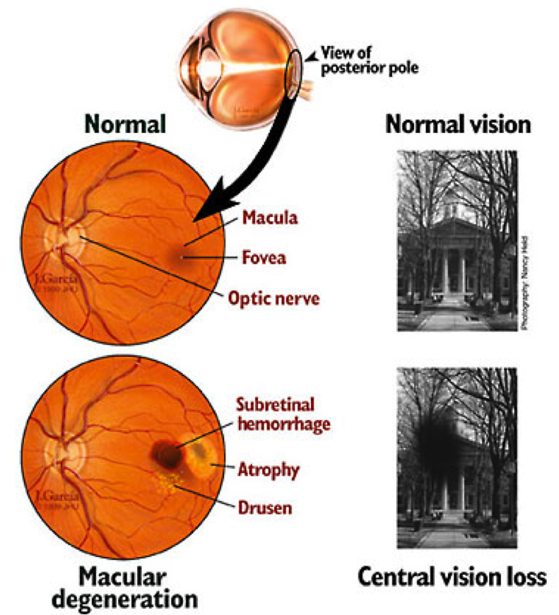 a brief look at the two types of muscular degeneration Macular degeneration: an eye disease that progressively destroys the macula  there are two types of amd -- the wet type and the far more frequent dry type.