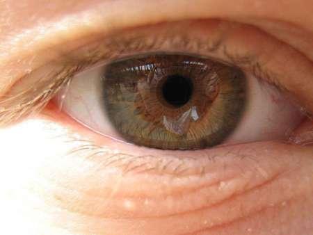 глаз человека в макулодистрофией
