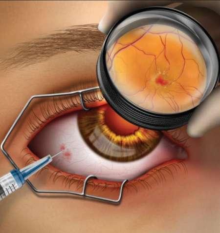 инъекция в глаз