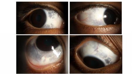 глаз с разных ракурсов с ПВХРД сетчатки